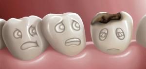 Diş Çürüğü Nedir? Nasıl Önlenir?   Kartal Diş Hekimi