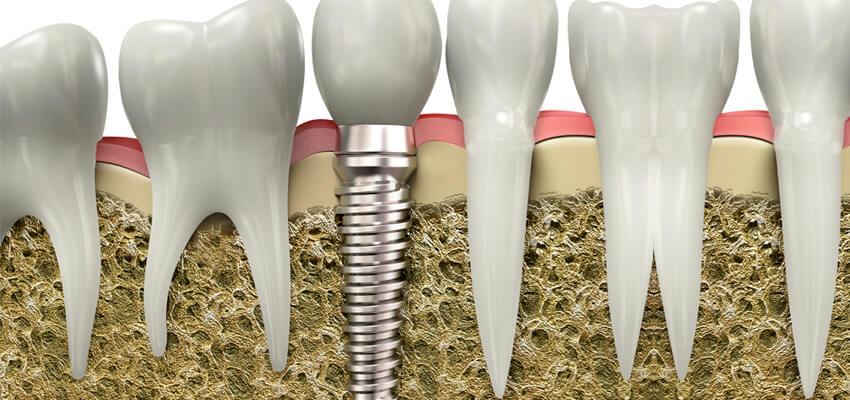 kartal implant