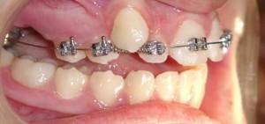 kartal ortodonti uzmanı