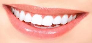 Kartal Estetik Diş | Estetik Diş Tasarımı | Fiyatları